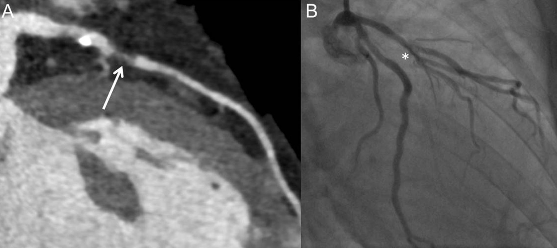 Coronary Ct Angiography For Patients With Suspected Coronary Artery