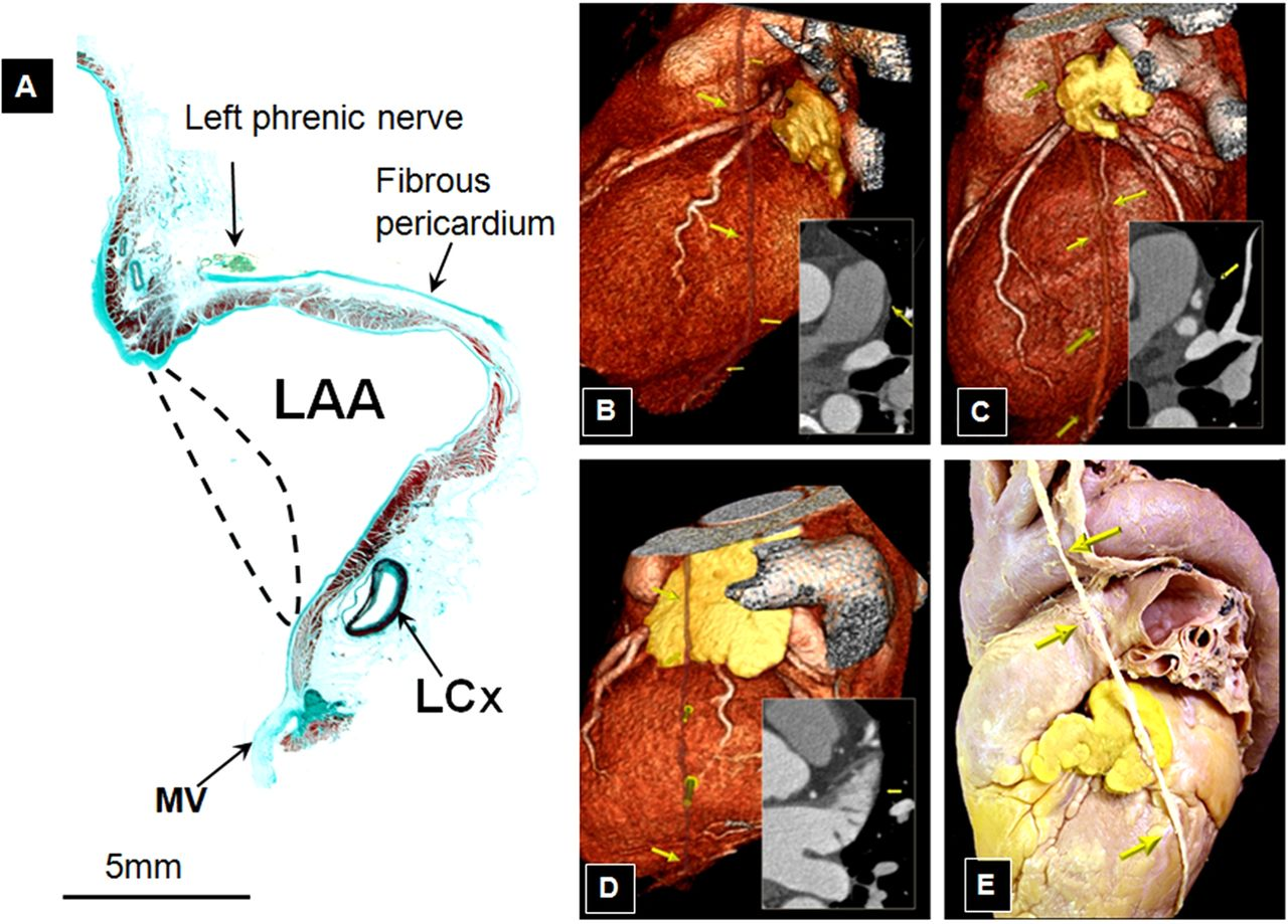Left atrial appendage: anatomy and imaging landmarks pertinent to ...