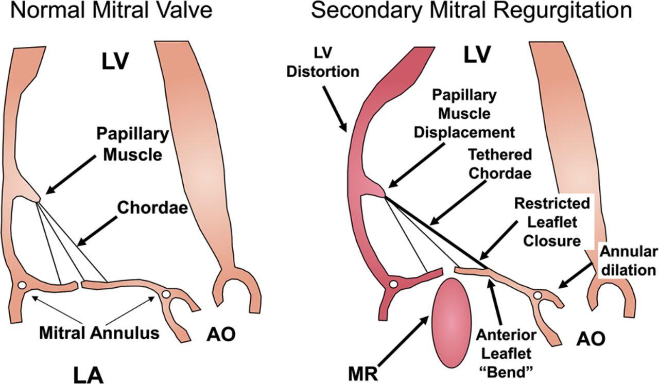 Tee Mitral Valve Anatomy