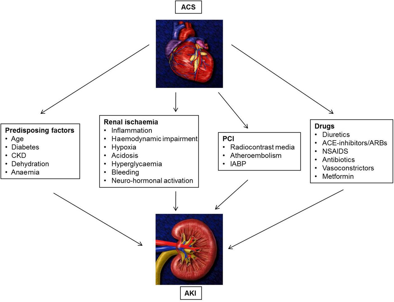 Acute kidney injury in patients with acute coronary syndromes heart download figure open in new tab download powerpoint figure 1 mechanisms possibly involved in the pathophysiology of aki ccuart Choice Image