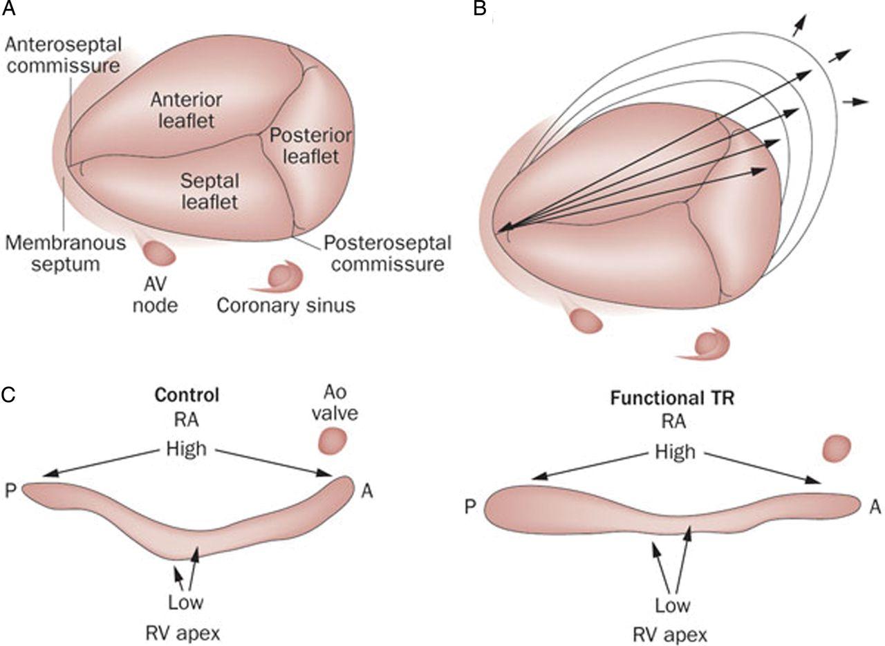 Secondary tricuspid valve regurgitation: a forgotten entity | Heart