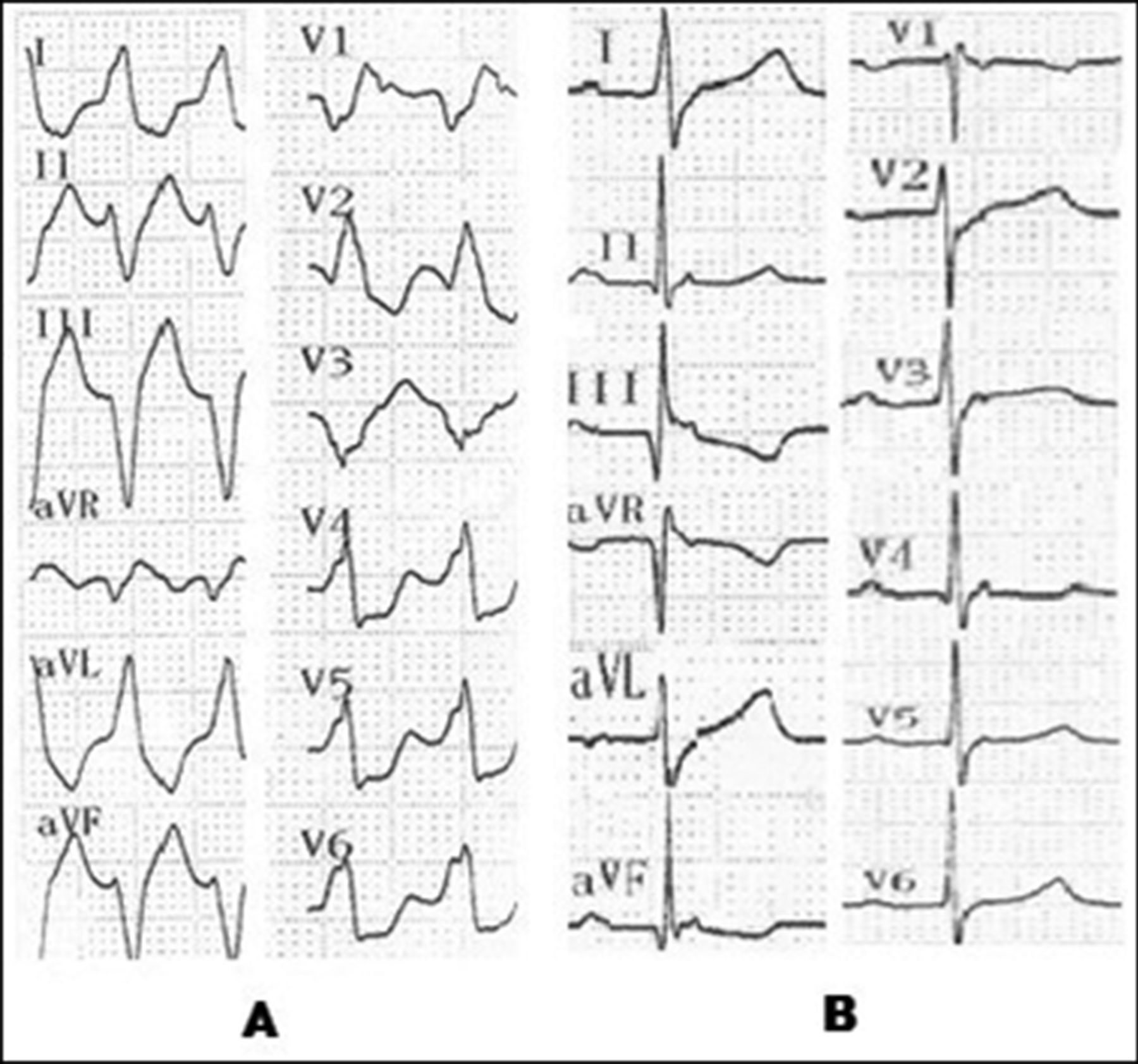 Left bundle branch block type wide QRS tachycardia: what