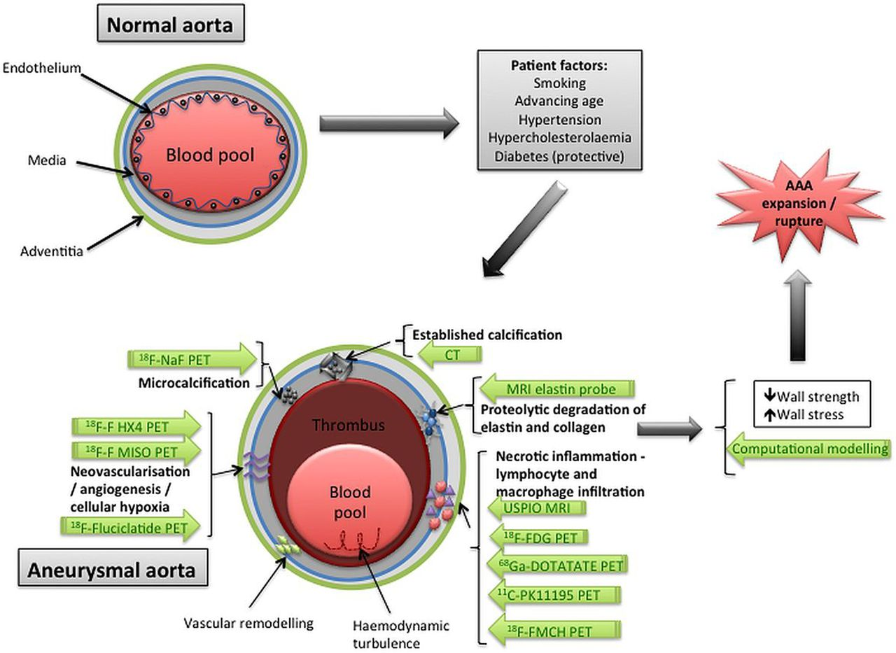 Monitoring the biological activity of abdominal aortic aneurysms ...