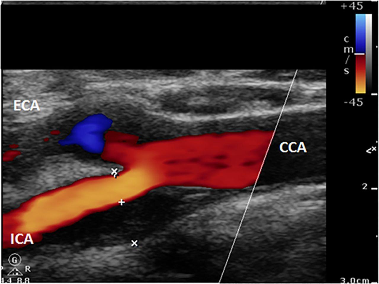 Carotid Artery Stenting Heart