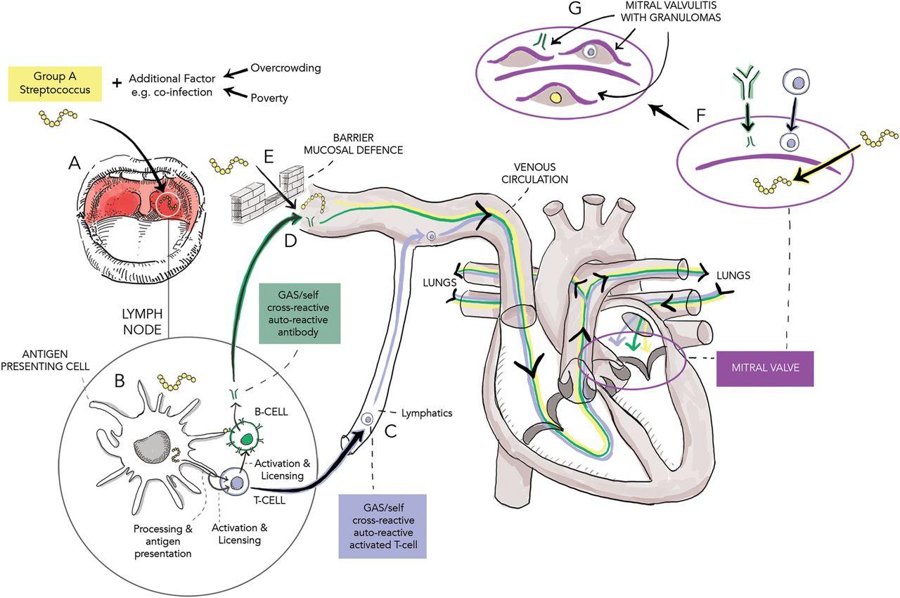 An Immunological Perspective On Rheumatic Heart Disease