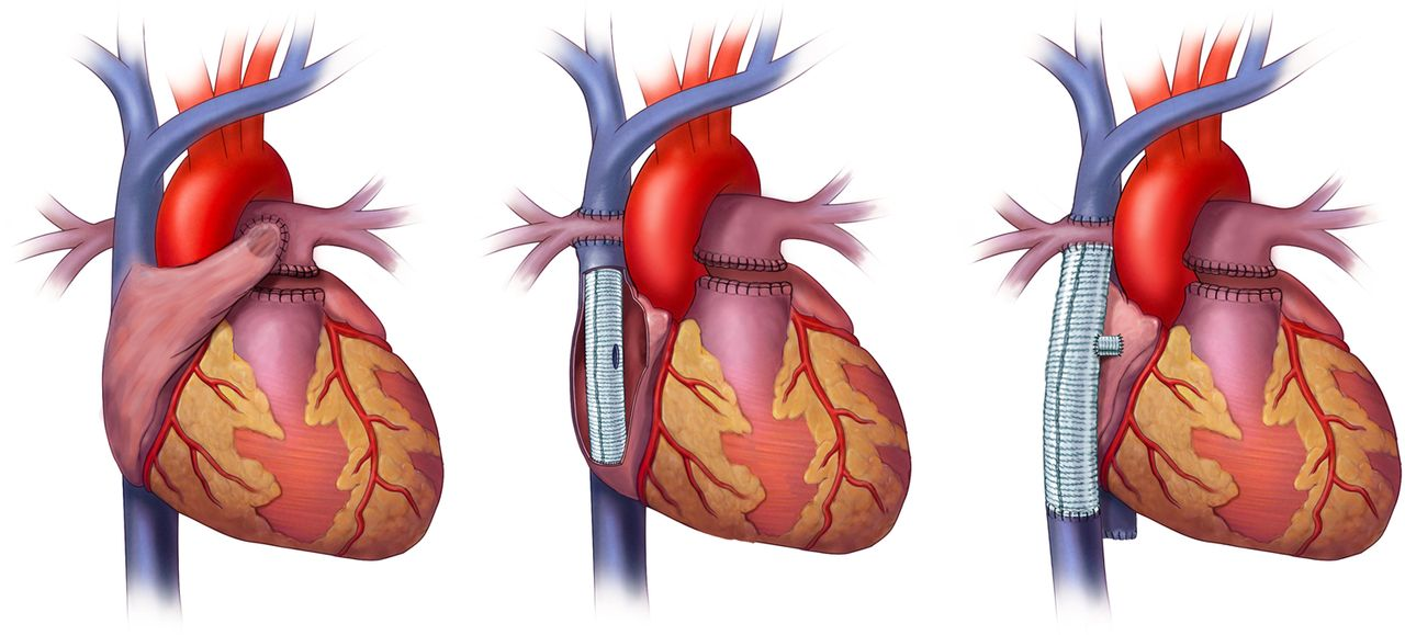 role of imaging in the evaluation of single ventricle with