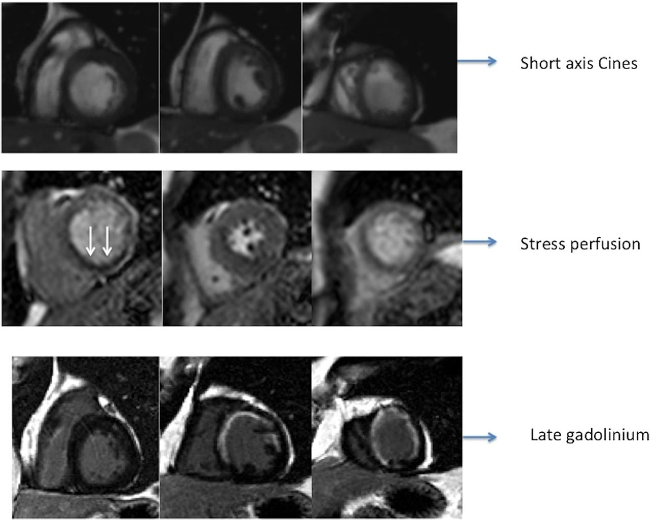 Mri In The Assessment Of Ischaemic Heart Disease Heart