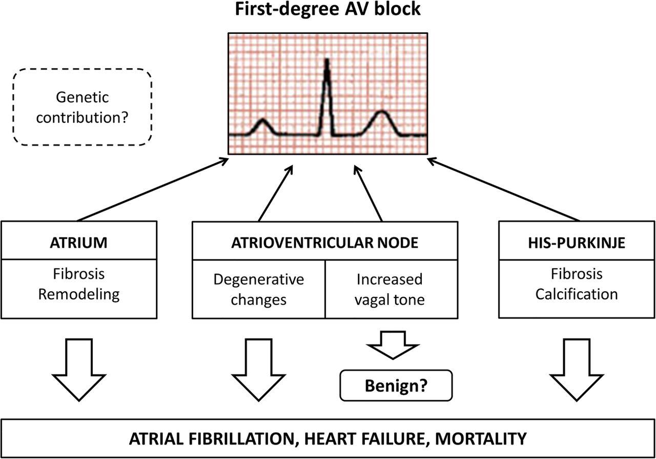 First-degree atrioventricular block: risk marker or innocent finding?    Heart