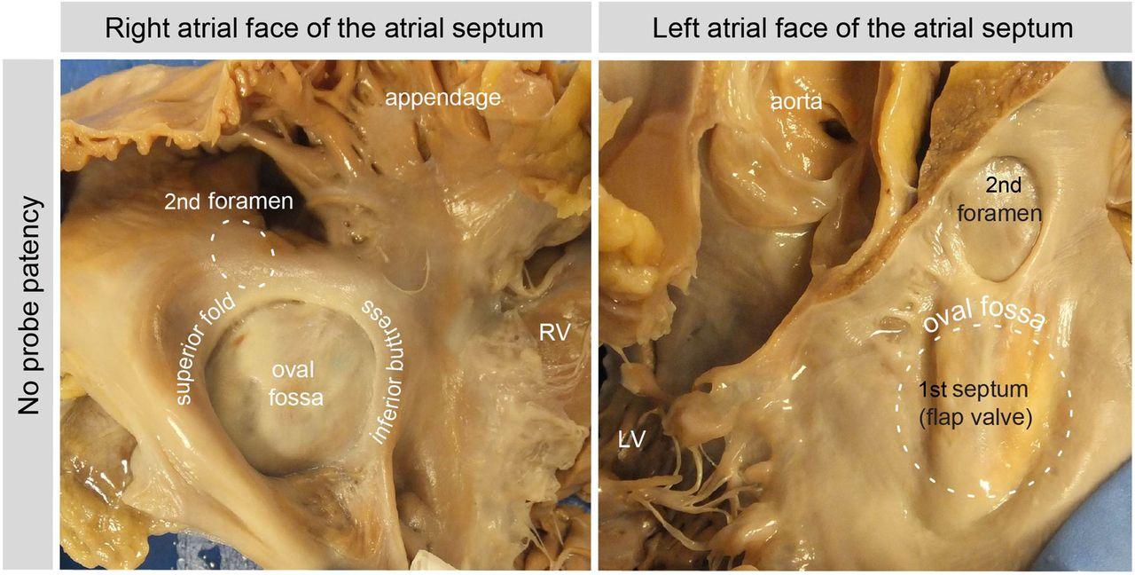 Development Of The Atrial Septum In Relation To Postnatal Anatomy