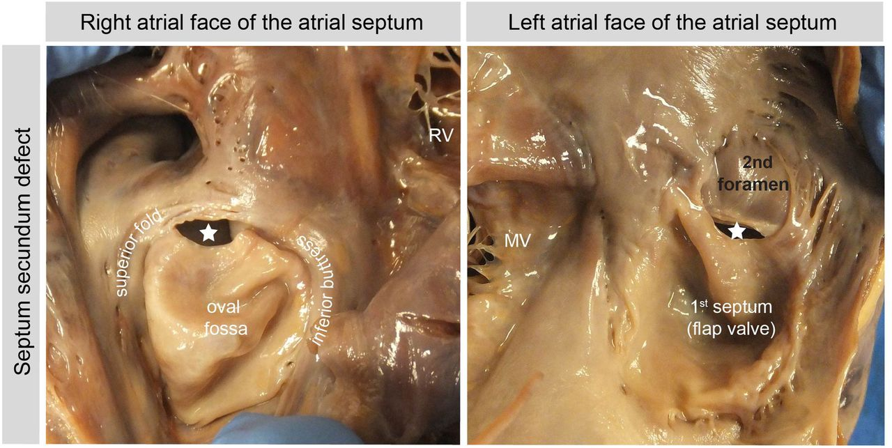 Development of the atrial septum in relation to postnatal anatomy ...