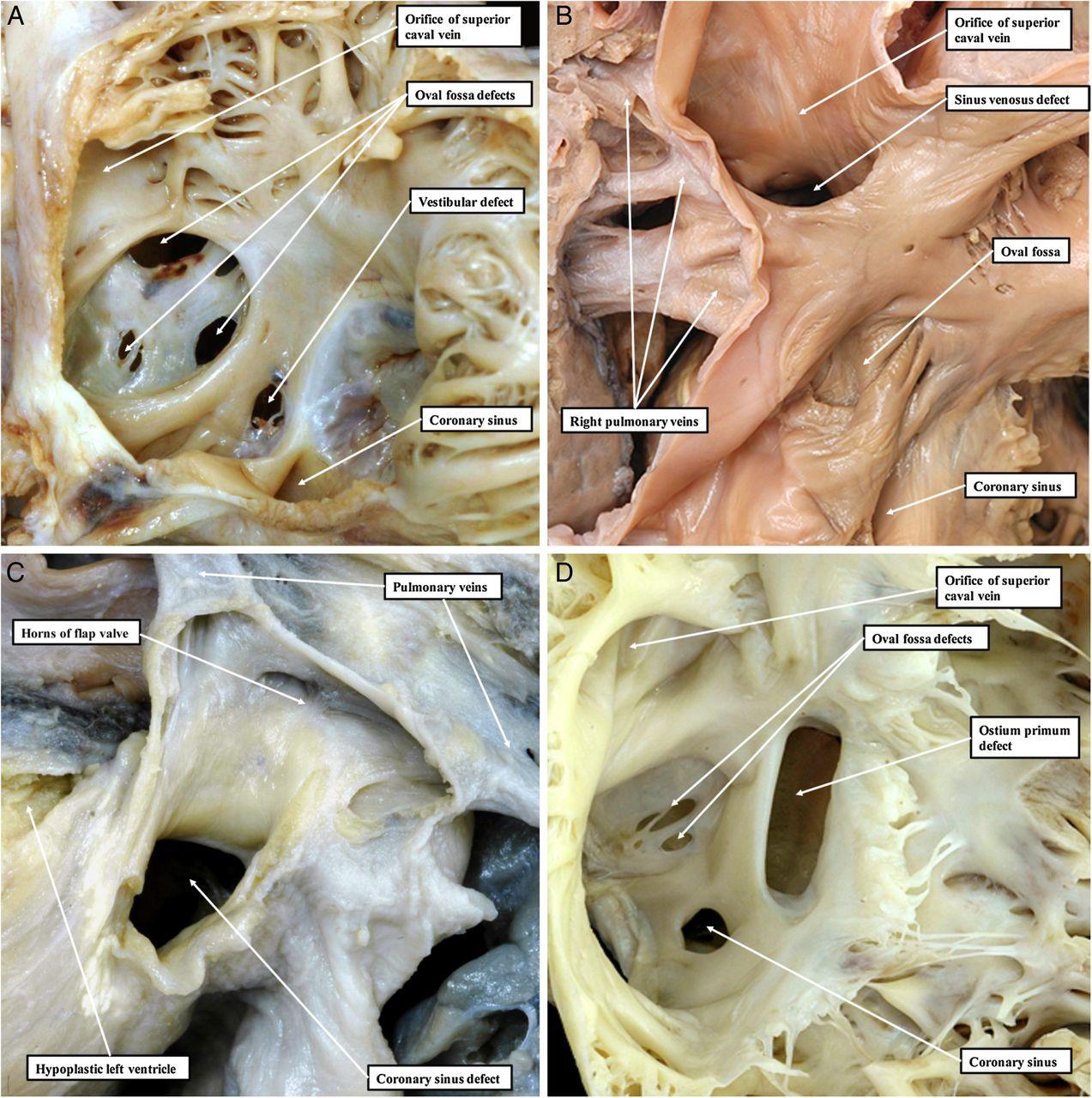 Development of the atrial septum in relation to postnatal anatomy ...
