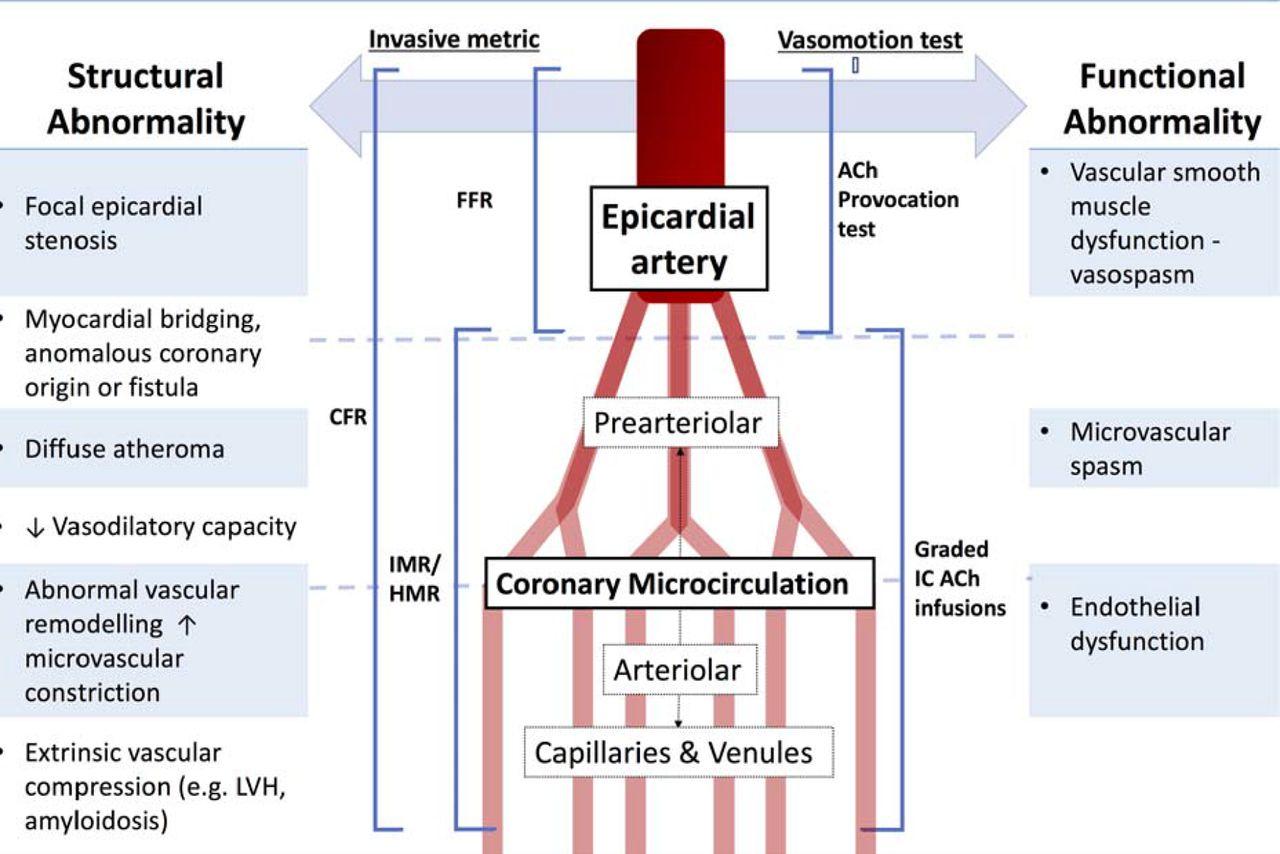 handbook of nuclear cardiology cardiac spect and cardiac pet