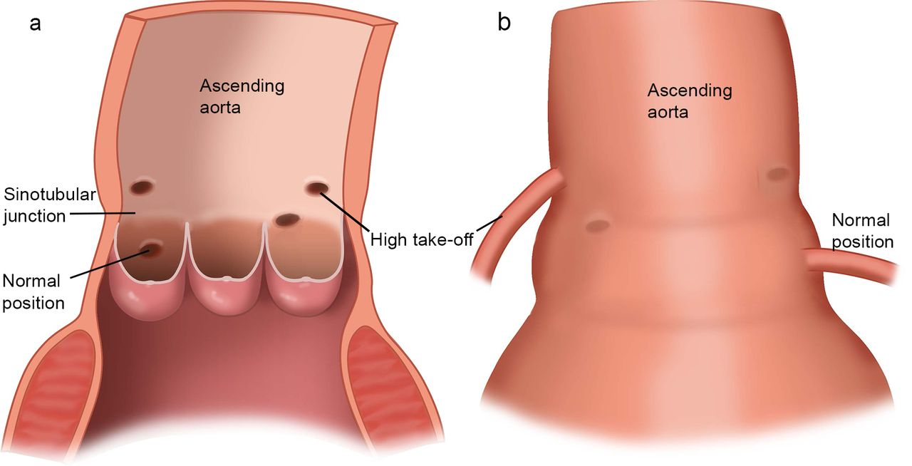 Coronary Anatomy In Children With Bicuspid Aortic Valves And