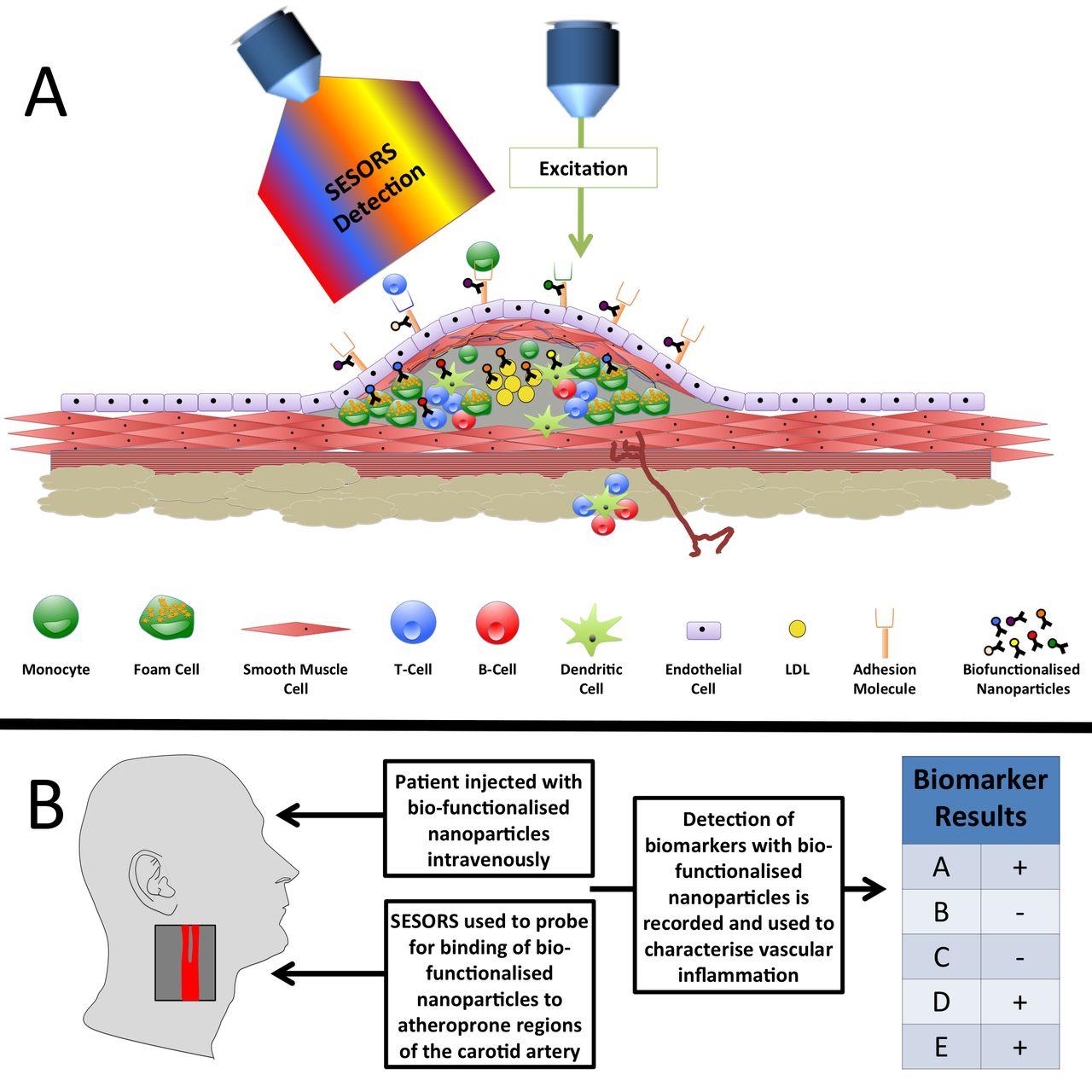 Molecular Imaging Of Atherosclerosis Spotlight On Raman