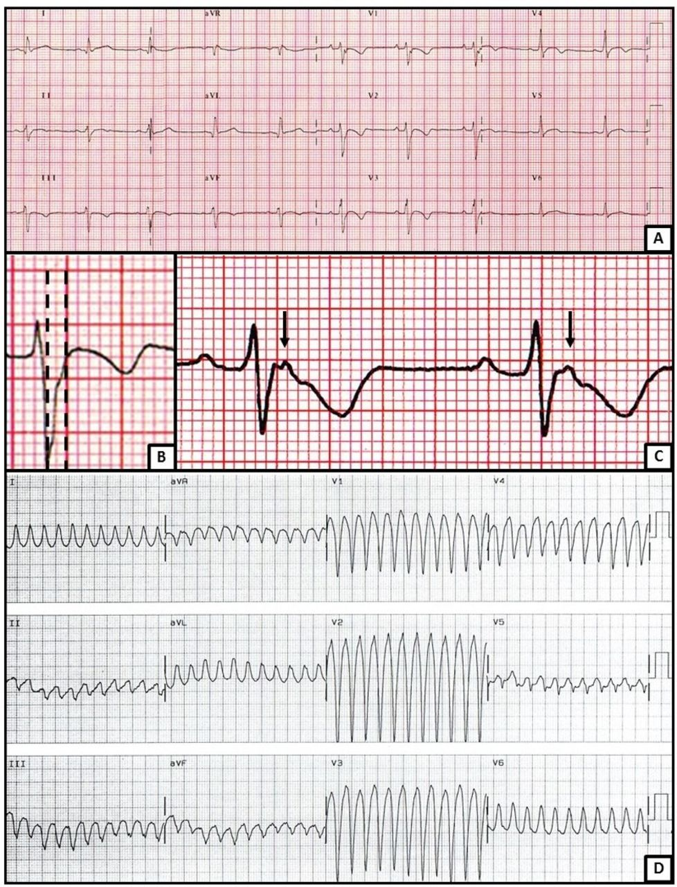 Arrhythmogenic cardiomyopathies (ACs): diagnosis, risk