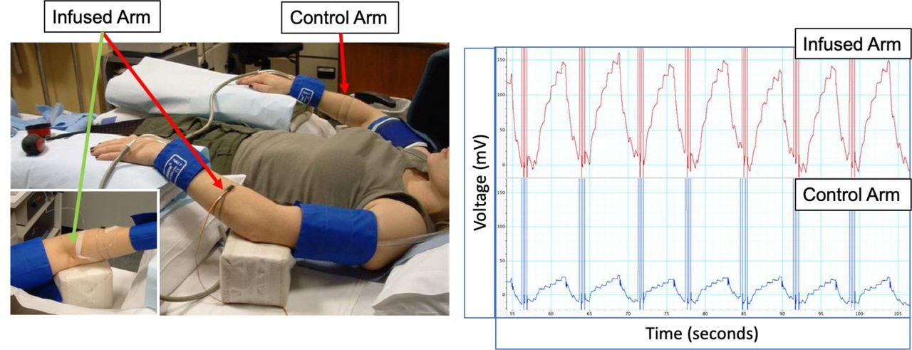 Non-invasive measurements of arterial function: What? When..