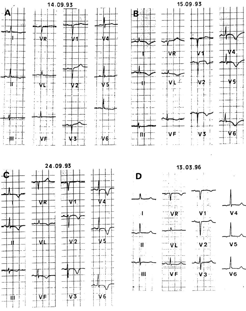 Human stress cardiomyopathy mimicking acute myocardial