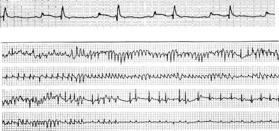 sotalol associated polymorphic ventricular tachycardia and coronary