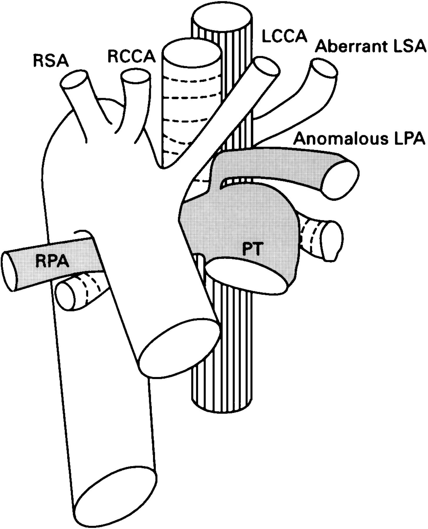 Anomalous Left Pulmonary Artery Without Pulmonary Artery Sling Heart