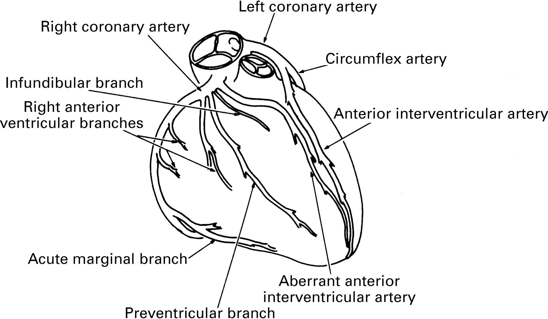 Coronary arterial anatomy in tetralogy of Fallot: morphological and ...