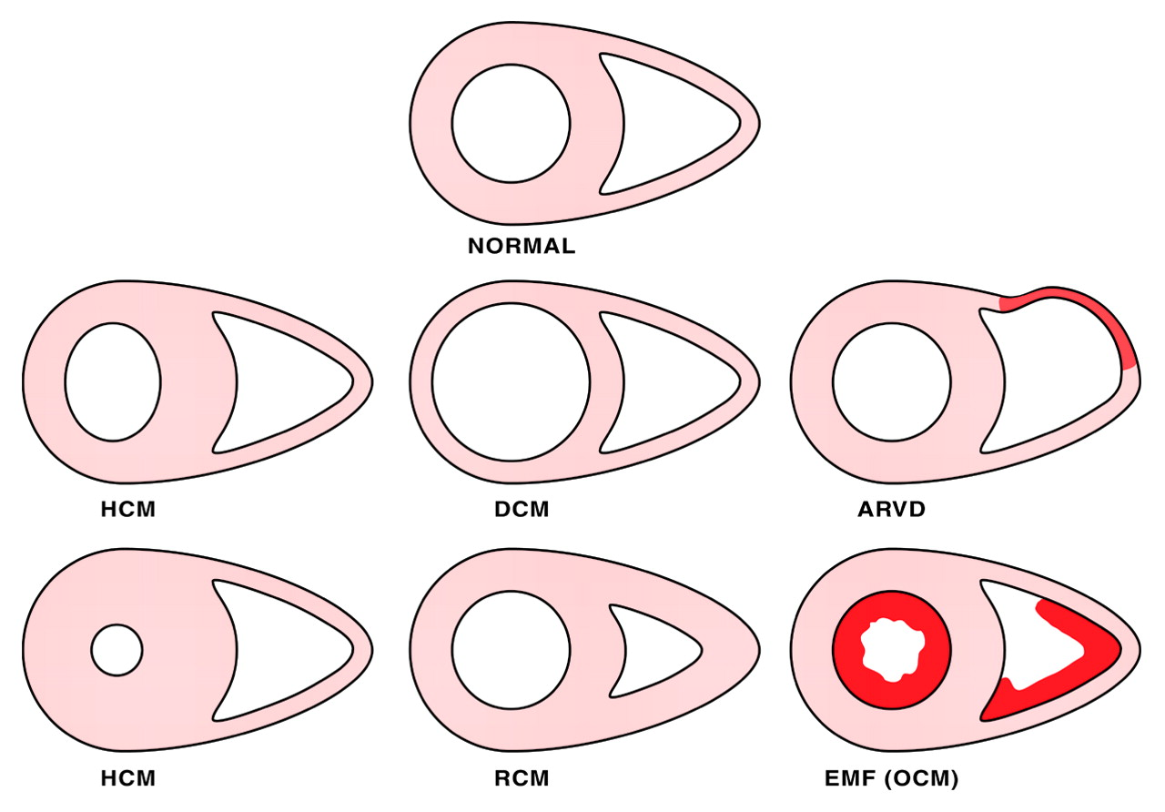 The Cardiomyopathies An Overview Heart
