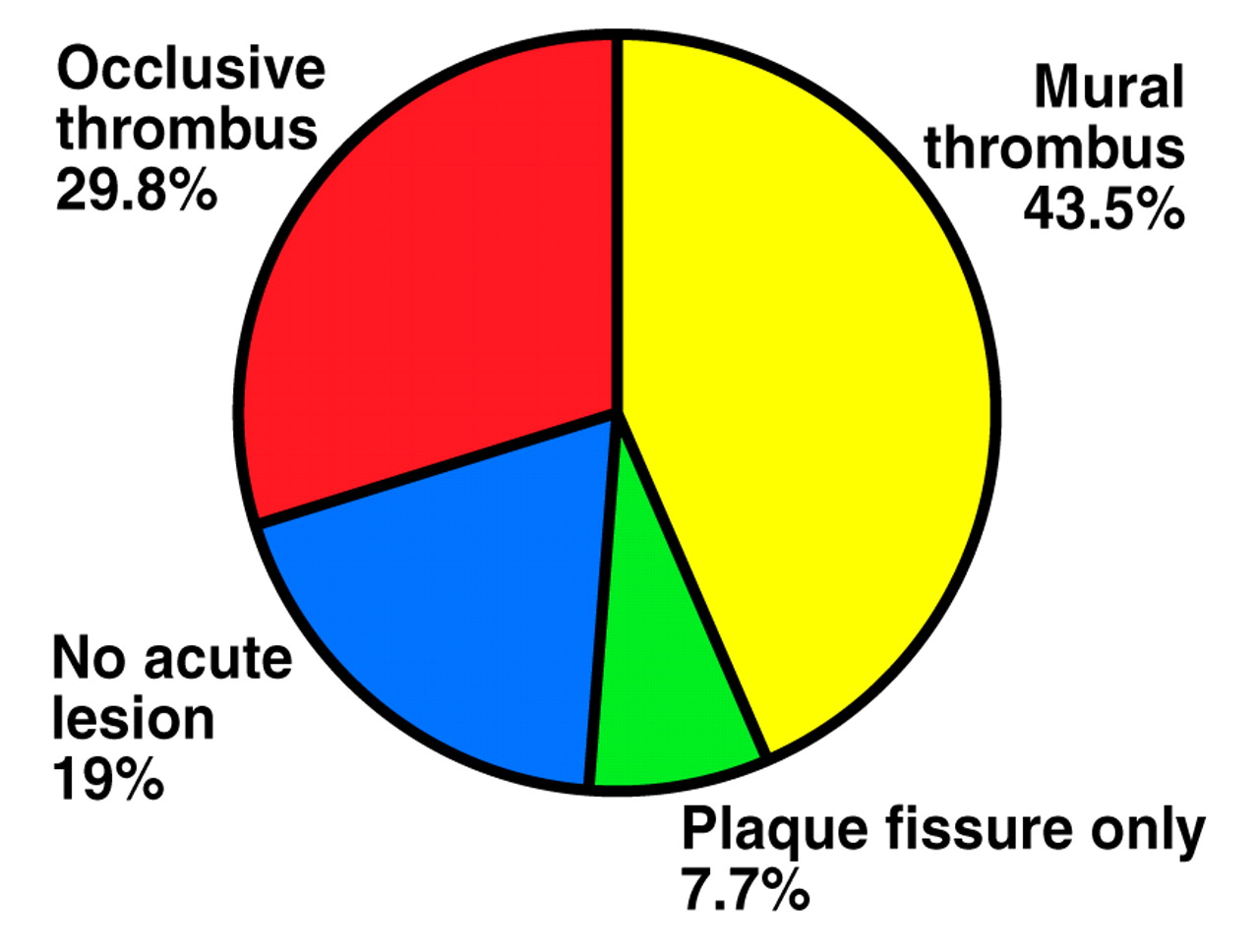 The natural history of acute myocardial infarction heart for Mural thrombus