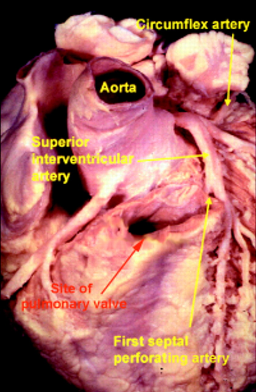 Clinical Anatomy Of The Aortic Root Heart