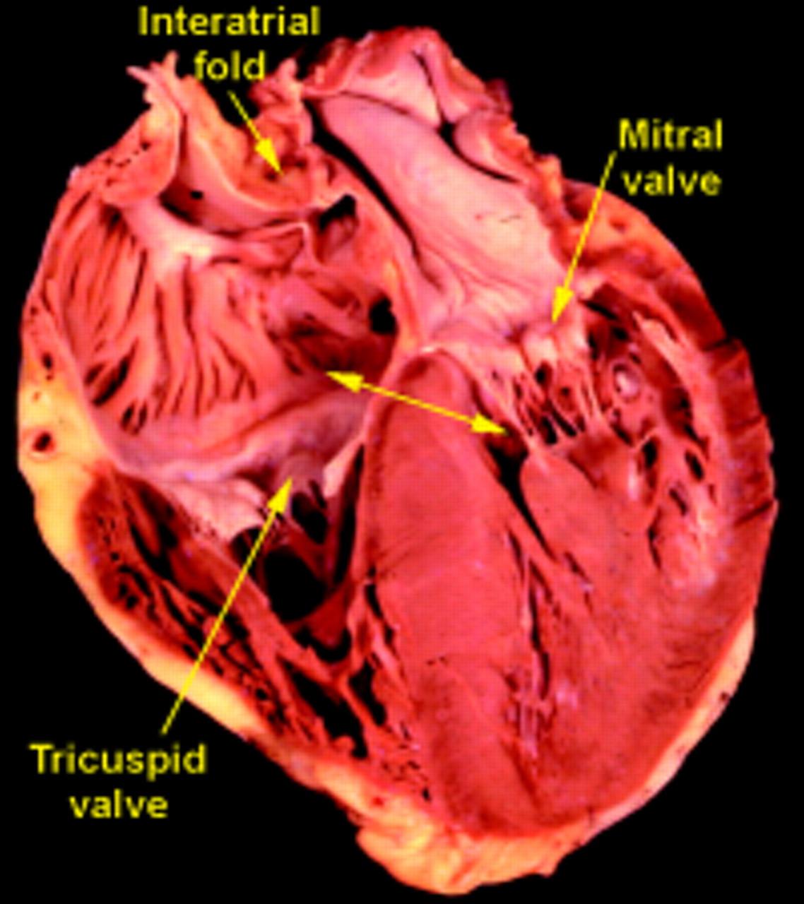Anatomic basis of cross-sectional echocardiography | Heart