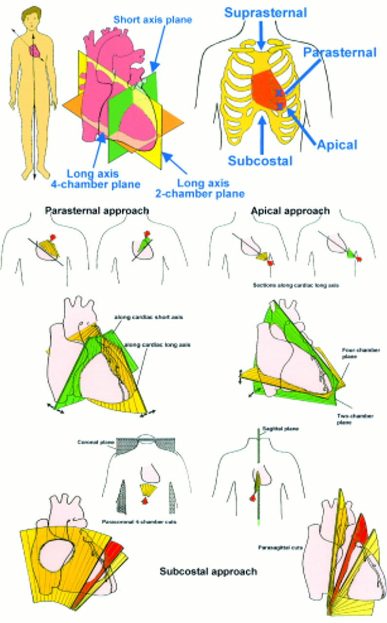 Anatomicechocardiographic correlates an introduction to normal and download figure ccuart Choice Image