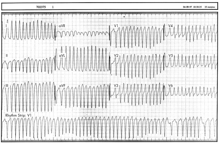 Syncope And Collapse. of recurrent syncope.