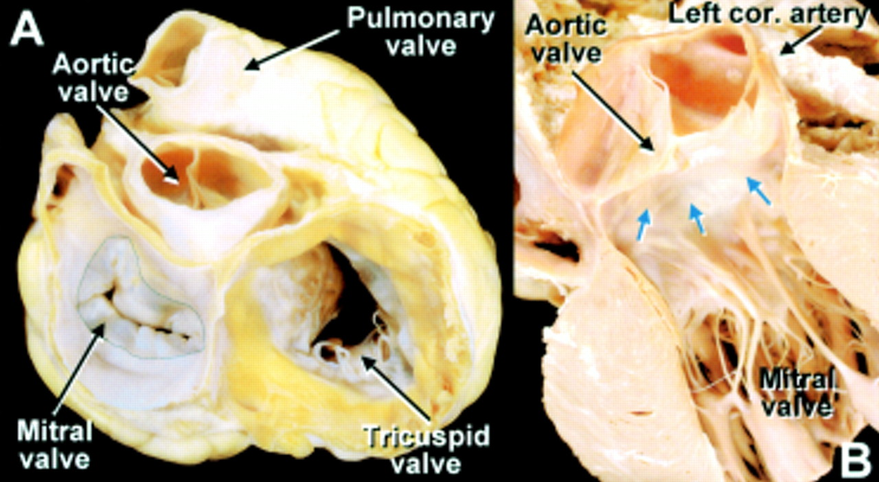 Anatomy Of The Mitral Valve Heart