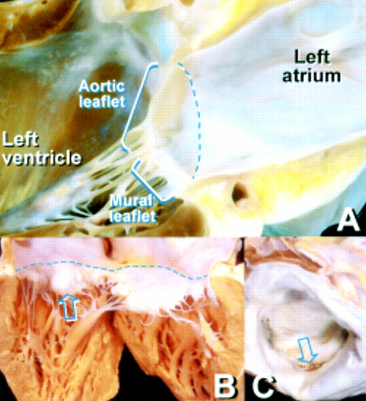 Anatomy Of The Mitral Valve Heart