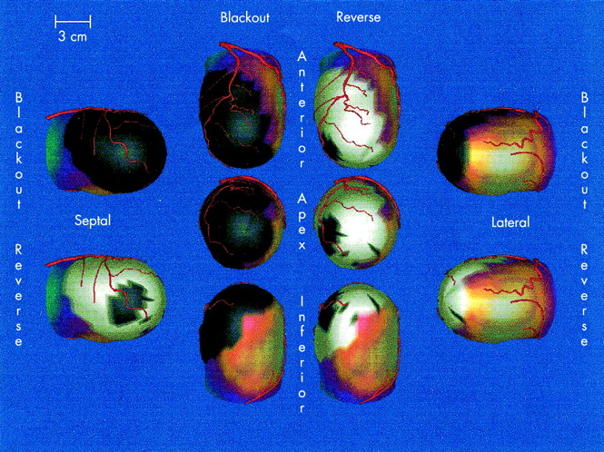 snm guidelines for myocardial perfusion imaging