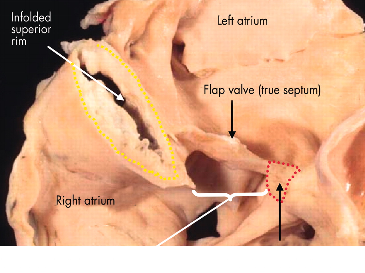 Development of the heart: (2) Septation of the atriums and ...
