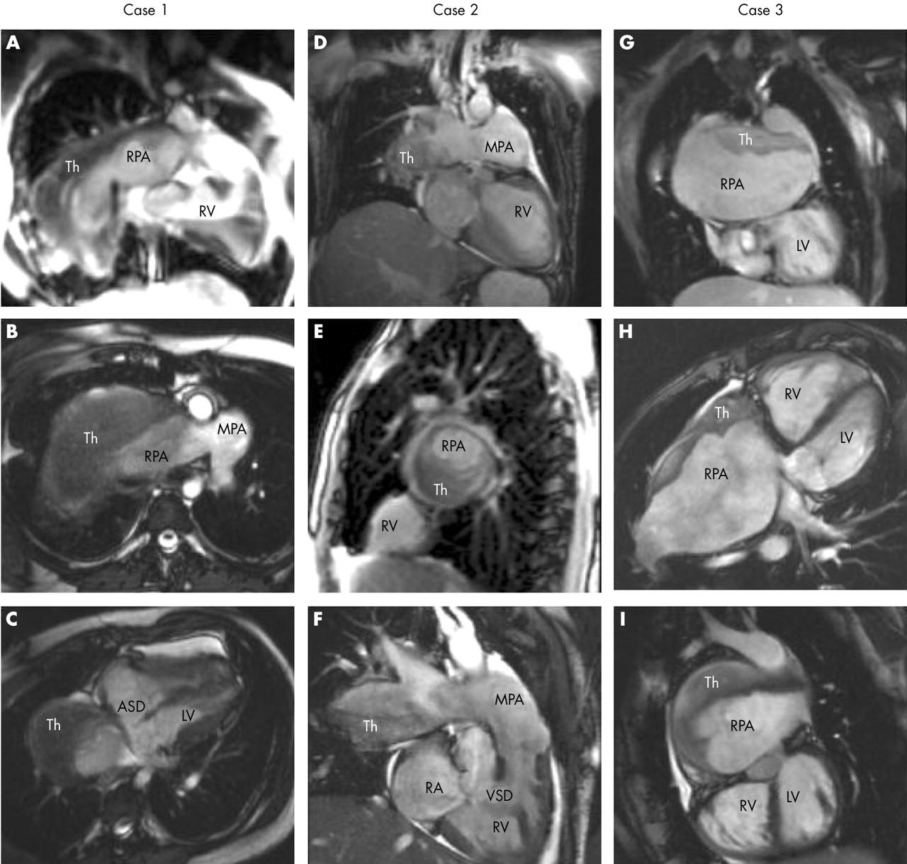 Massive pulmonary artery thrombosis with haemoptysis in for Atrial mural thrombus