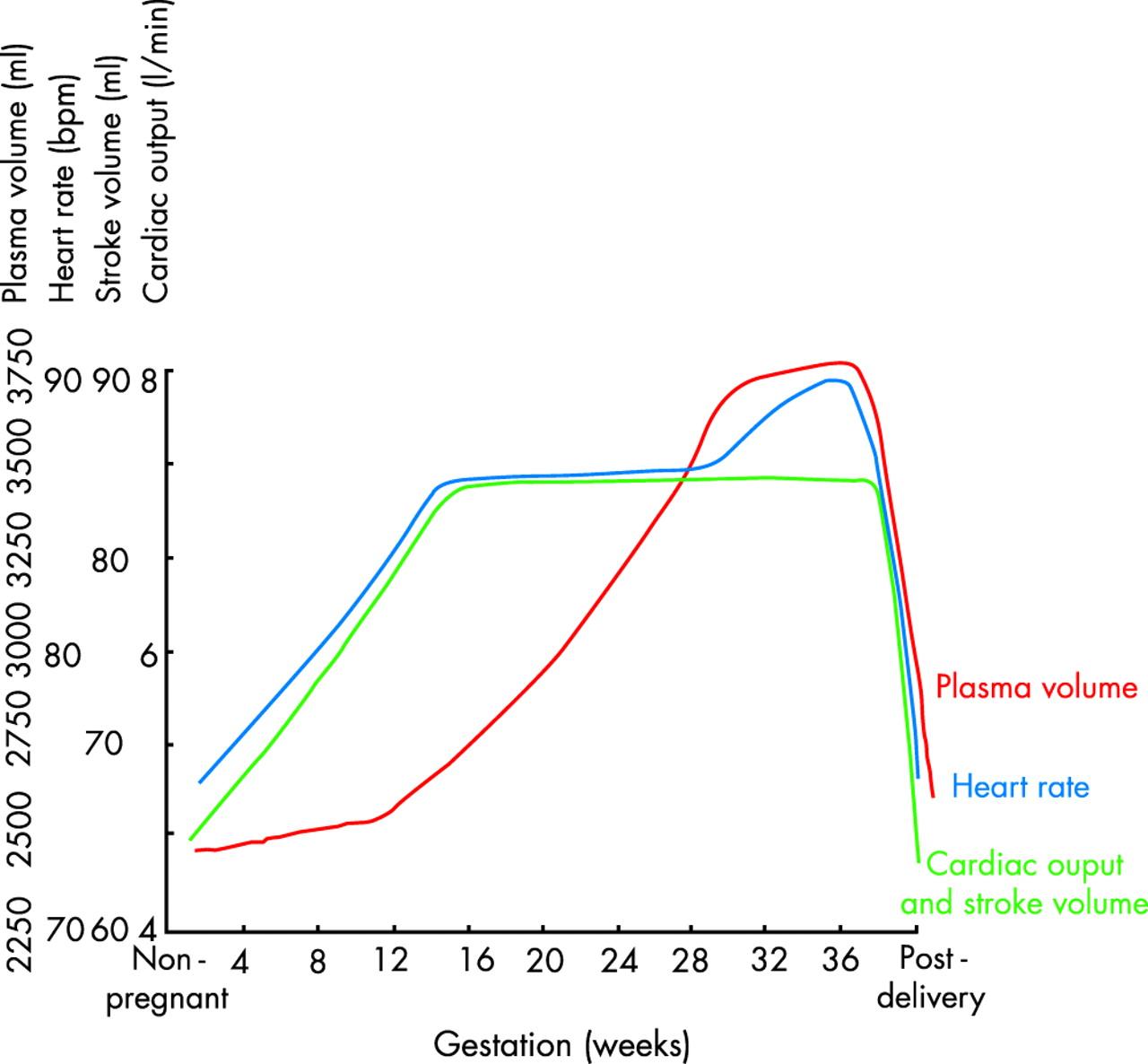 Pregnancy In Heart Disease Heart