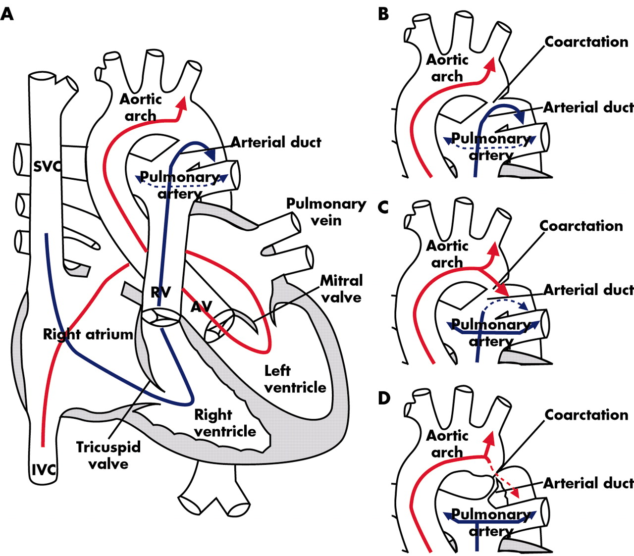 Coarctation of the aorta from fetus to adult curable
