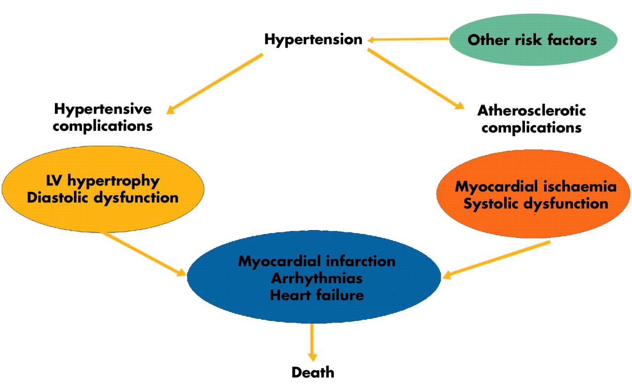 Left ventricular hypertrophy in hypertension: its arrhythmogenic potential  | Heart