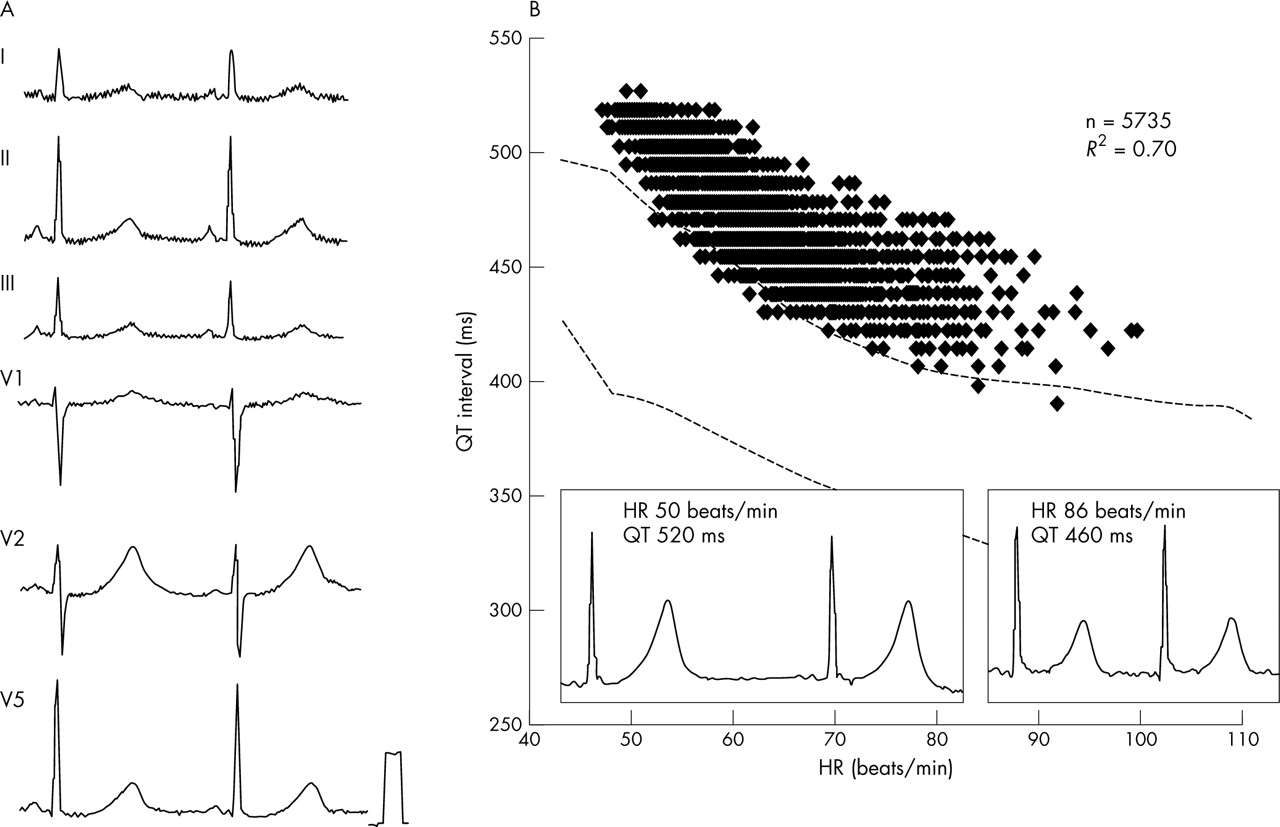 New quantitative methods for evaluation of dynamic changes in QT