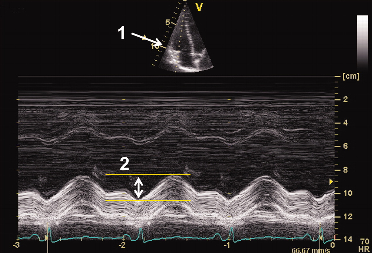 Assessing right ventricular function the role of echocardiography ...