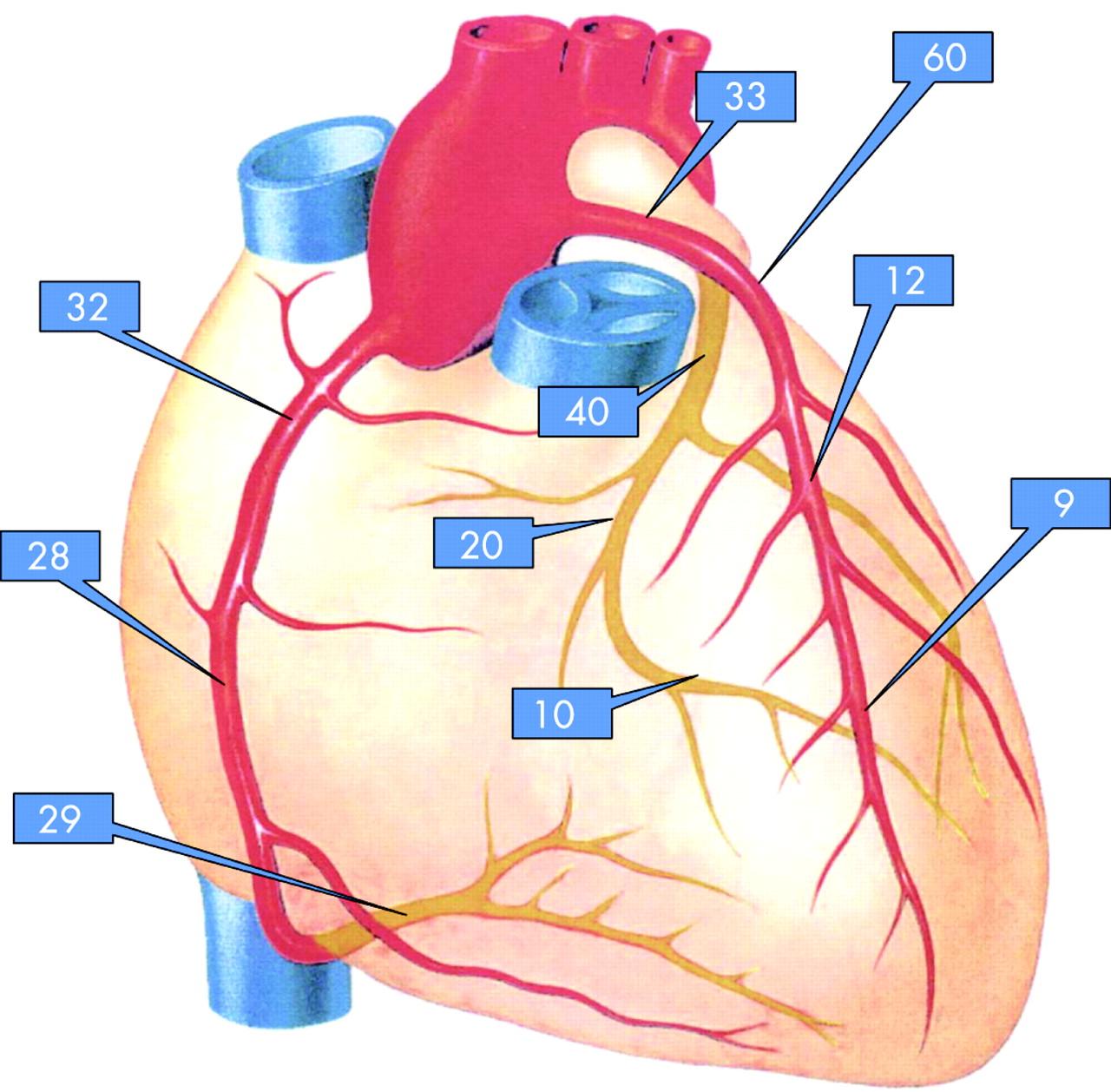 Non invasive screening for coronary artery disease calcium download figure pooptronica Images