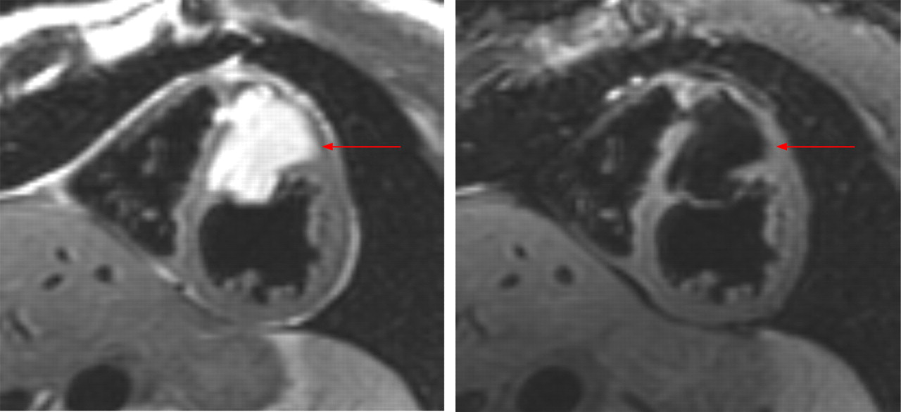 Advances In Clinical Applications Of Cardiovascular Magnetic