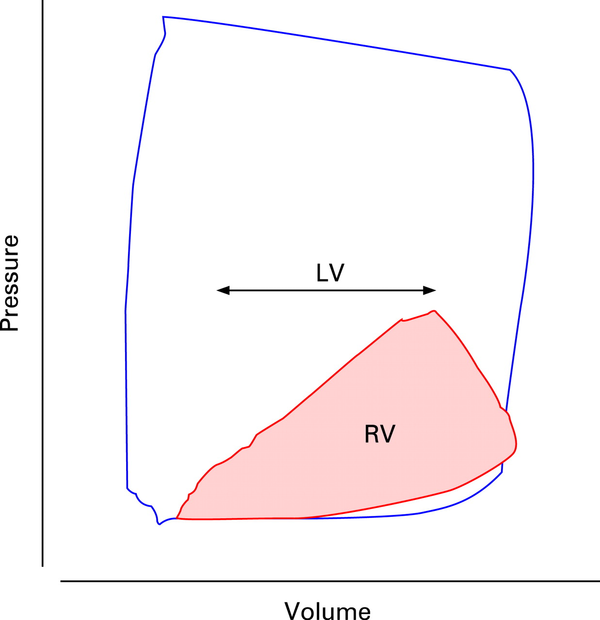 The Right Ventricle Anatomy Physiology And Clinical Imaging Heart