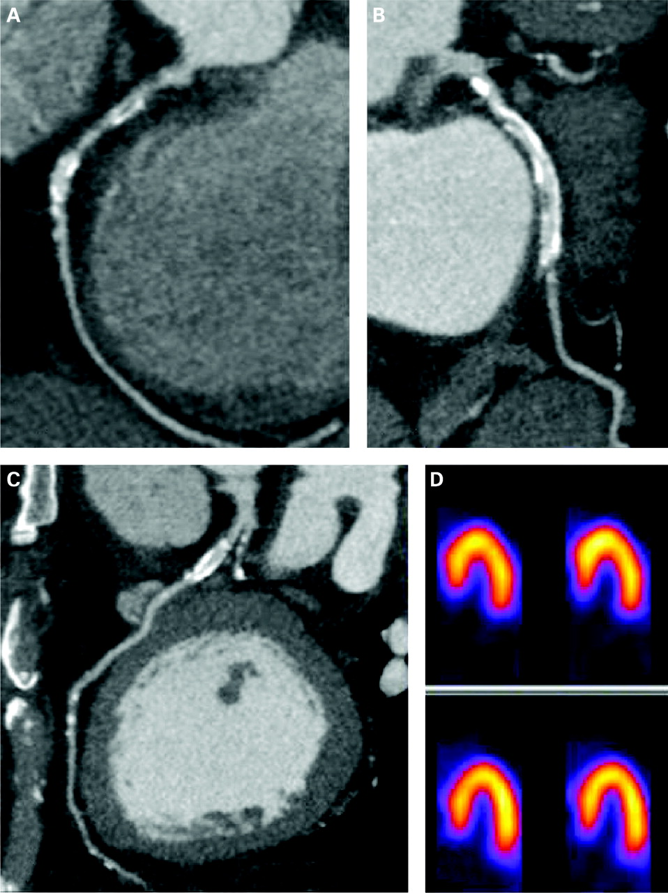 CT angiography: an alternative to nuclear perfusion imaging? | Heart