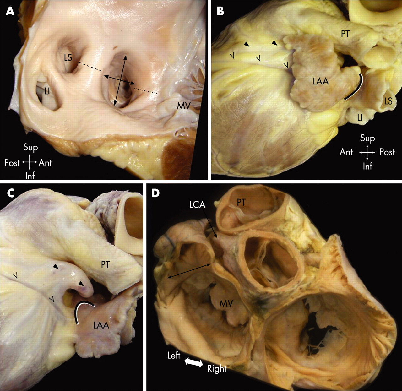 Occluding the left atrial appendage: anatomical considerations   Heart