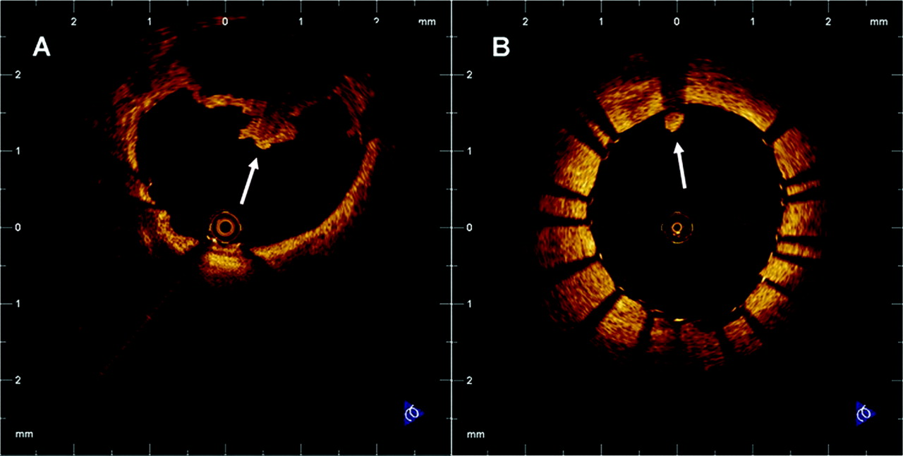 optical coherence tomography assessment of the acute effects of download figure