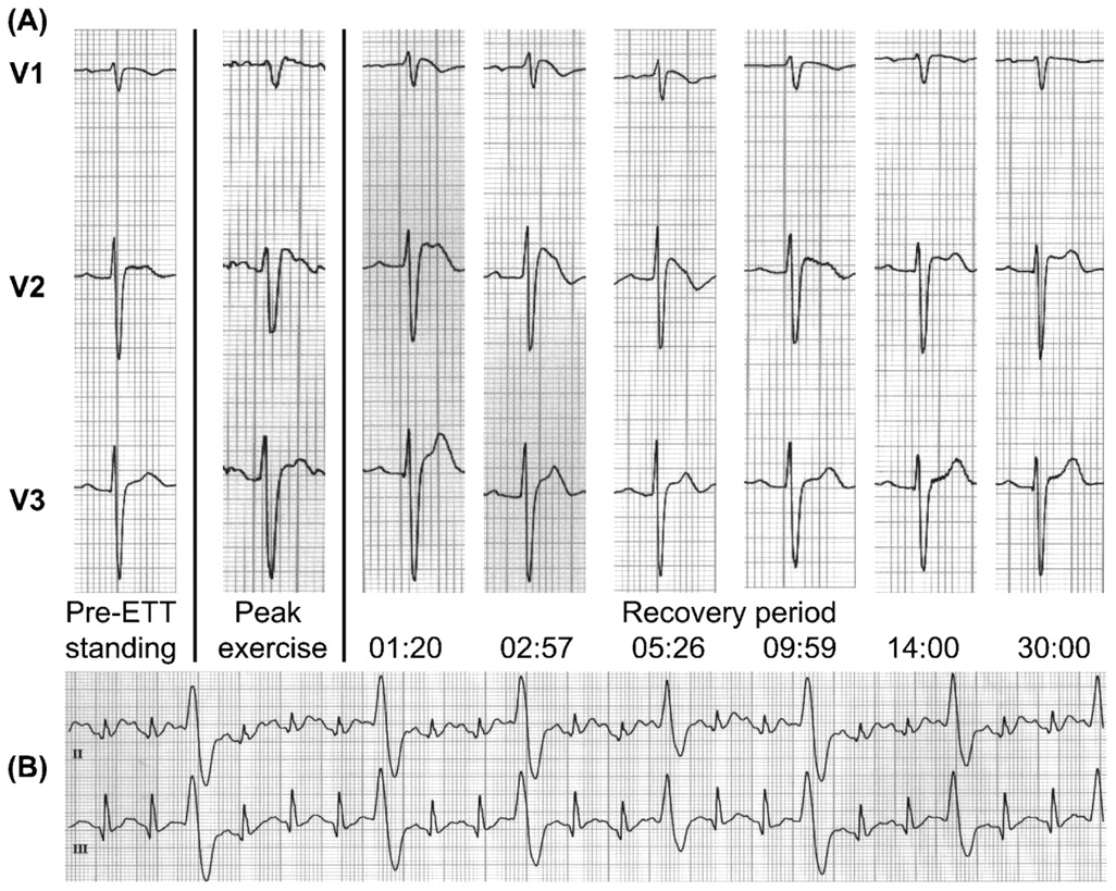photo regarding Ekg Practice Strips Printable identify Unmasking of the Brugada phenotype throughout physical fitness tests