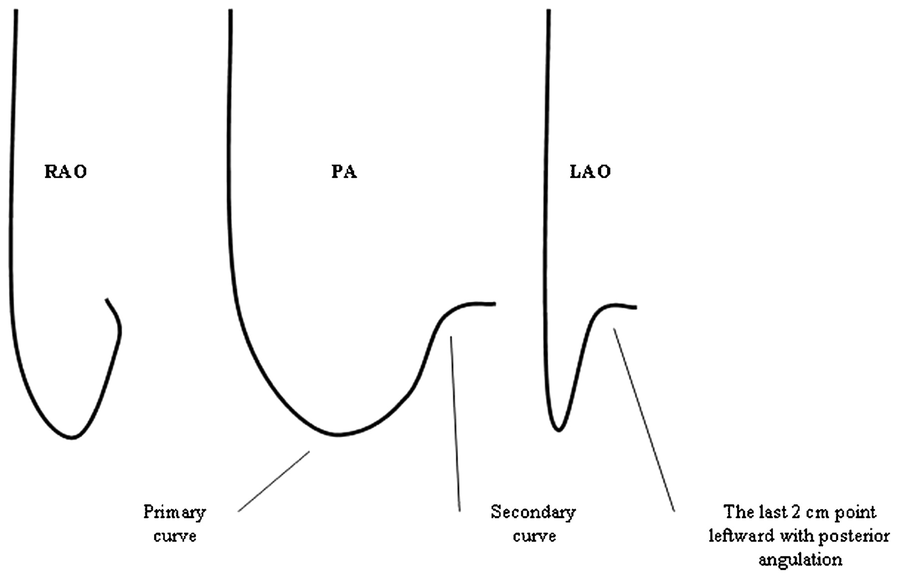 Selective site right ventricular pacing heart electrocardiographic definition ccuart Choice Image