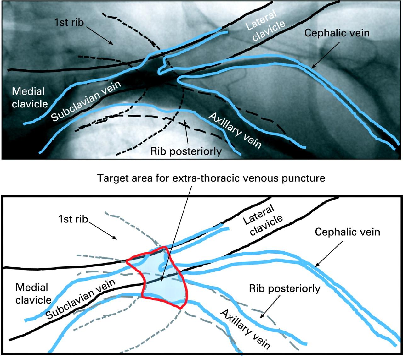 permanent pacemaker implantation technique: part i | heart, Cephalic Vein