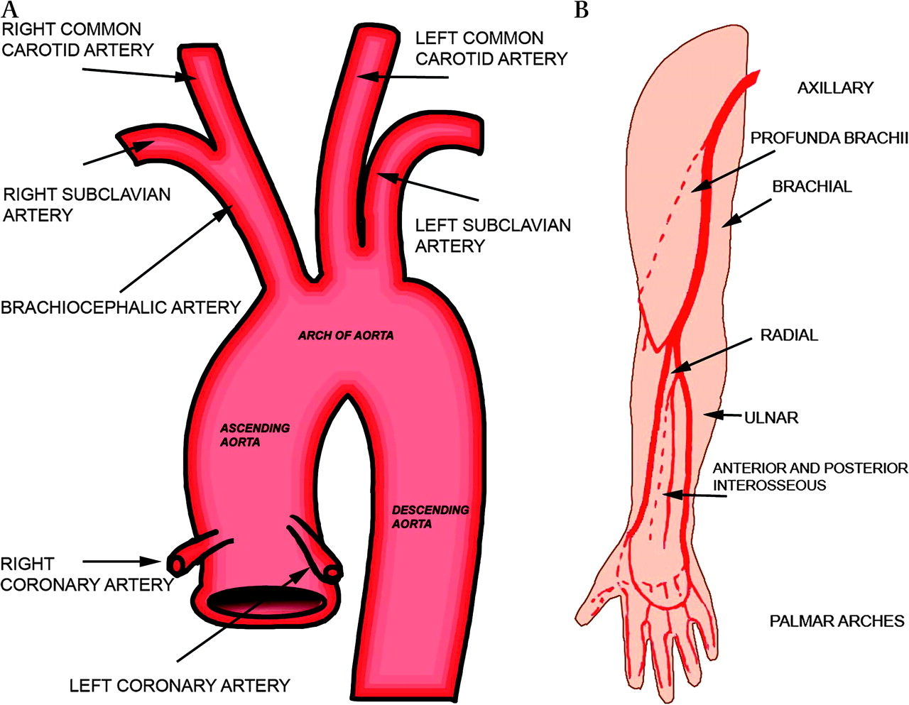 Transradial Cardiac Procedures The State Of The Art Heart